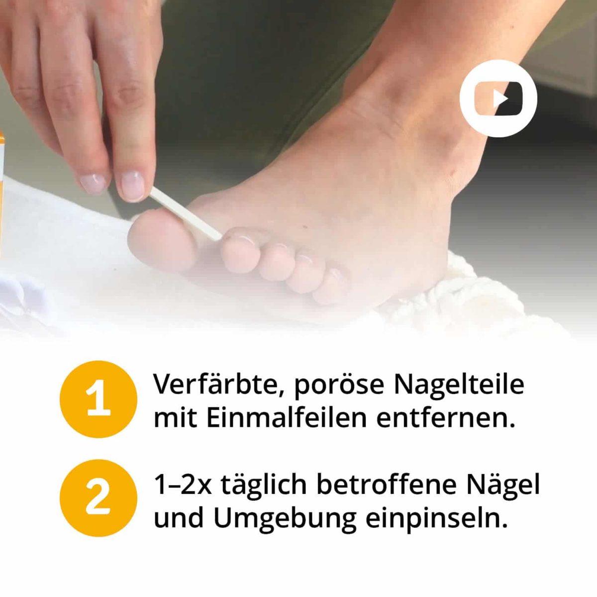 Casida Set Apotheke Nagelöl Fußspray Rabatt Bundle PZN 10022445 10751322 Nagelpilz pflanzlich Natürlich Gesundheitsprodukte6