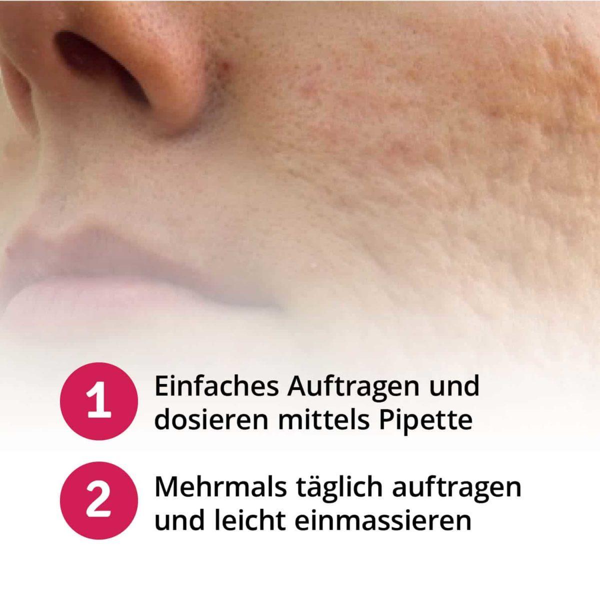 Casida Narbenpflegeöl Repair & Protect – 20 ml 10086758 PZN Apotheke Akne alte Aknenarben behandeln Gesicht Körper pflanzlich (1)6