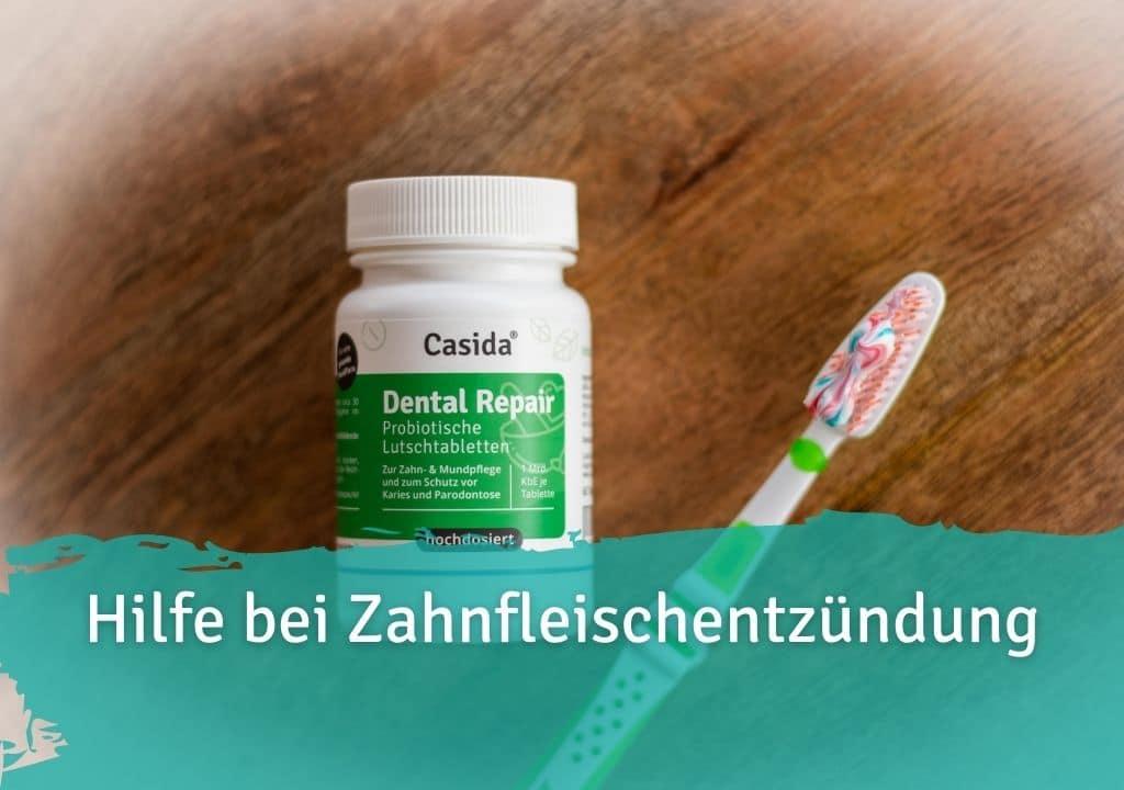 Hilfe bei Zahnfleischentzündung Casida Dental Repair Lutschtabletten – 60 Stk. 14401553 PZN Apotheke Karies Zahnpflege Parodontose
