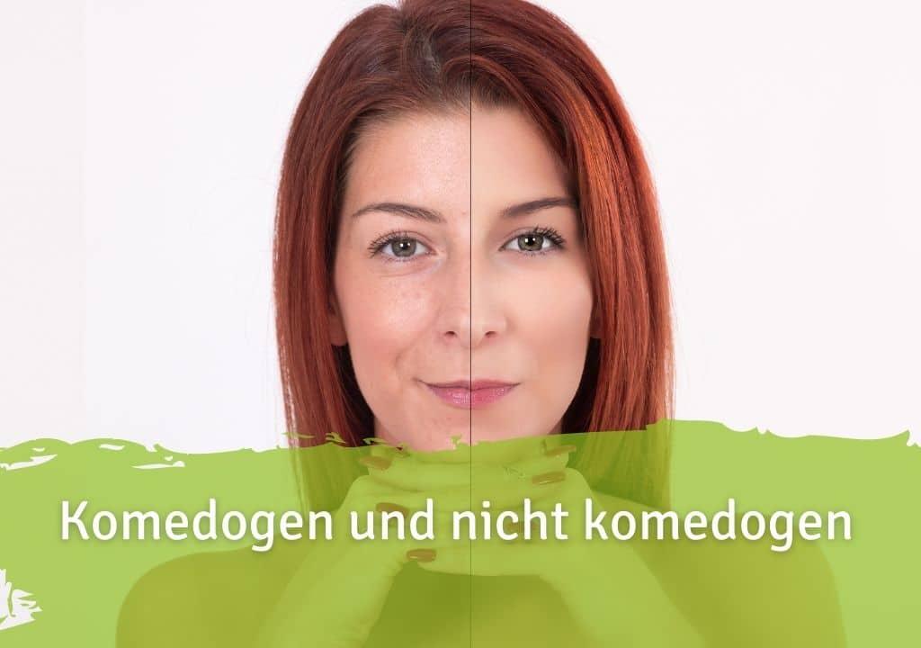 Komedogen und nicht komedogen